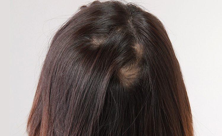 これって円形脱毛症?主な特徴、種類、対策方法について