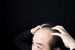 抜け毛対策はまず原因の把握から!最新の研究からわかる抜け毛のタイプ